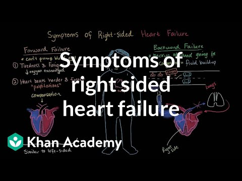 Symptoms of right sided heart failure