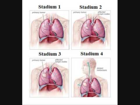 Ciri ciri penderita kanker paru paru