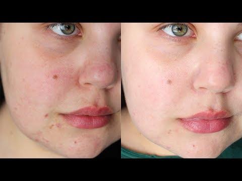 affordable-laser-treatment-for-acne-scars-|-ipl-laser-before-&-after