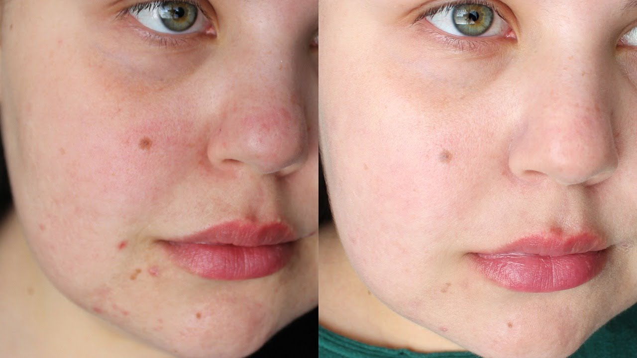 How to get rid of acne scars laser treatment