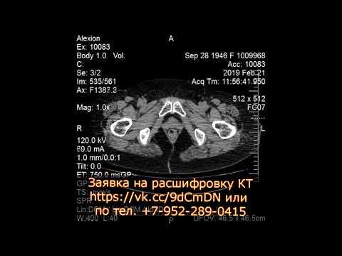 Множественные кисты в почках после пересмотра диска КТ урографии с контрастированием