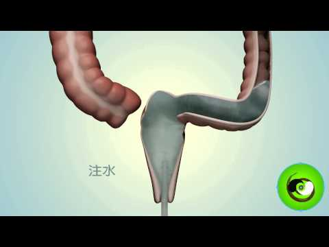 AHSONG Colonic Purifying Mechanism