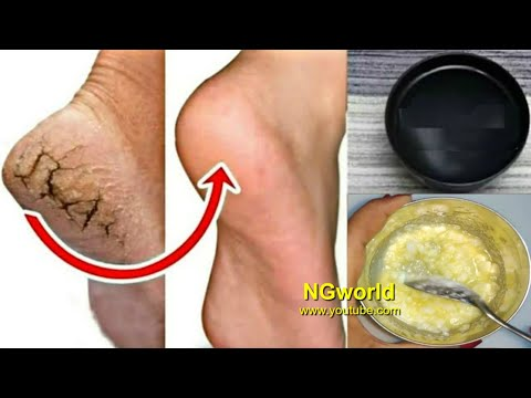 In Just 5 Minutes - Get Rid of CRACKED HEELS Permanently, Magical Cracked Heels Home Remedy