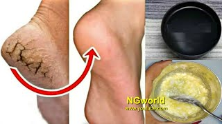 In Just 5 Minutes - Get Rid of CRACKED HEELS Permanently, Magical Cracked Heels Home Remedy thumbnail