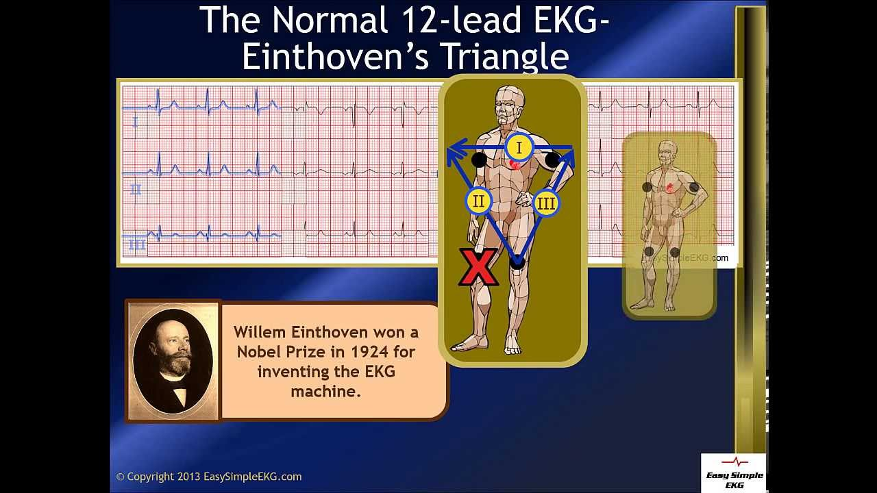 The Normal 12 Lead Ekg And Einthoven S Triangle
