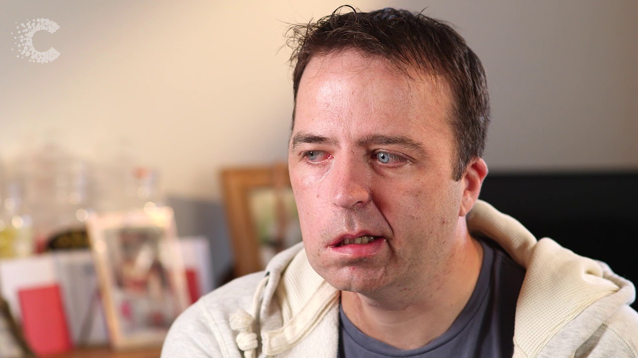 Salivary Gland Cancer: Dad who lost his smile to cancer following treatment    Cancer Research UK
