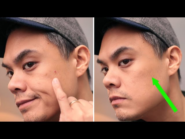MEN: Here's how to COVER UP a PIMPLE (+ how to treat and prevent them) • Effortless Gent