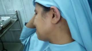 Ear Wax Removal In A Beloved Nun Sister - Dr Paulose FRCS (ENT)