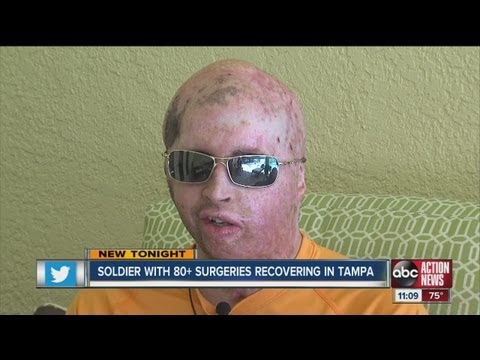 Second most wounded Iraq soldier recovering in Tampa