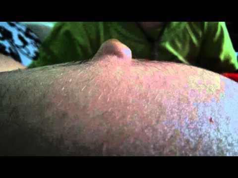 Болит и вылез пупок при беременности