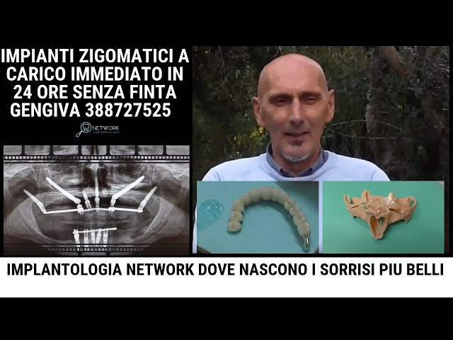 Implantologia Dentale - Prezzi Costi  (Intervista Angiolino)
