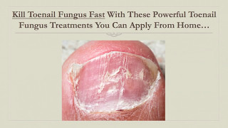 Kill Toenail Fungus Fast With This Powerful Toenail Fungus Treatment You Can Apply From Home