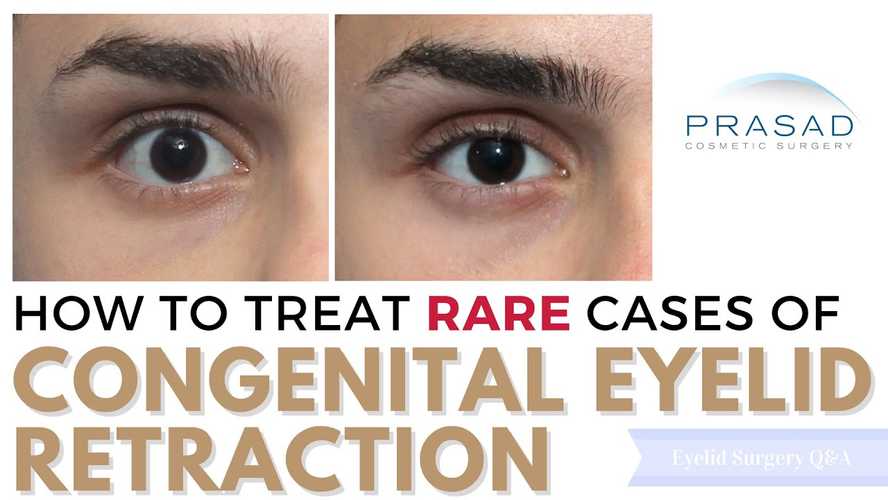 how genetic upper and lower eyelid retraction can be treated