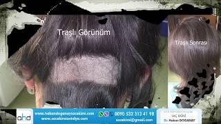 unshaven hair transplant  ( men women)