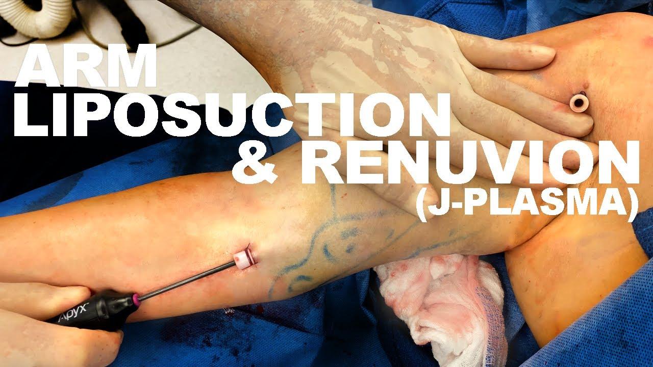 Arm Liposuction & Renuvion (J-Plasma) - Dr. Paul Ruff | West End Plastic Surgery