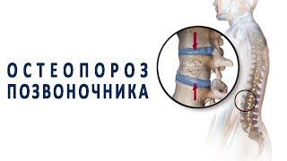 Что нужно знать об остеопорозе позвоночника