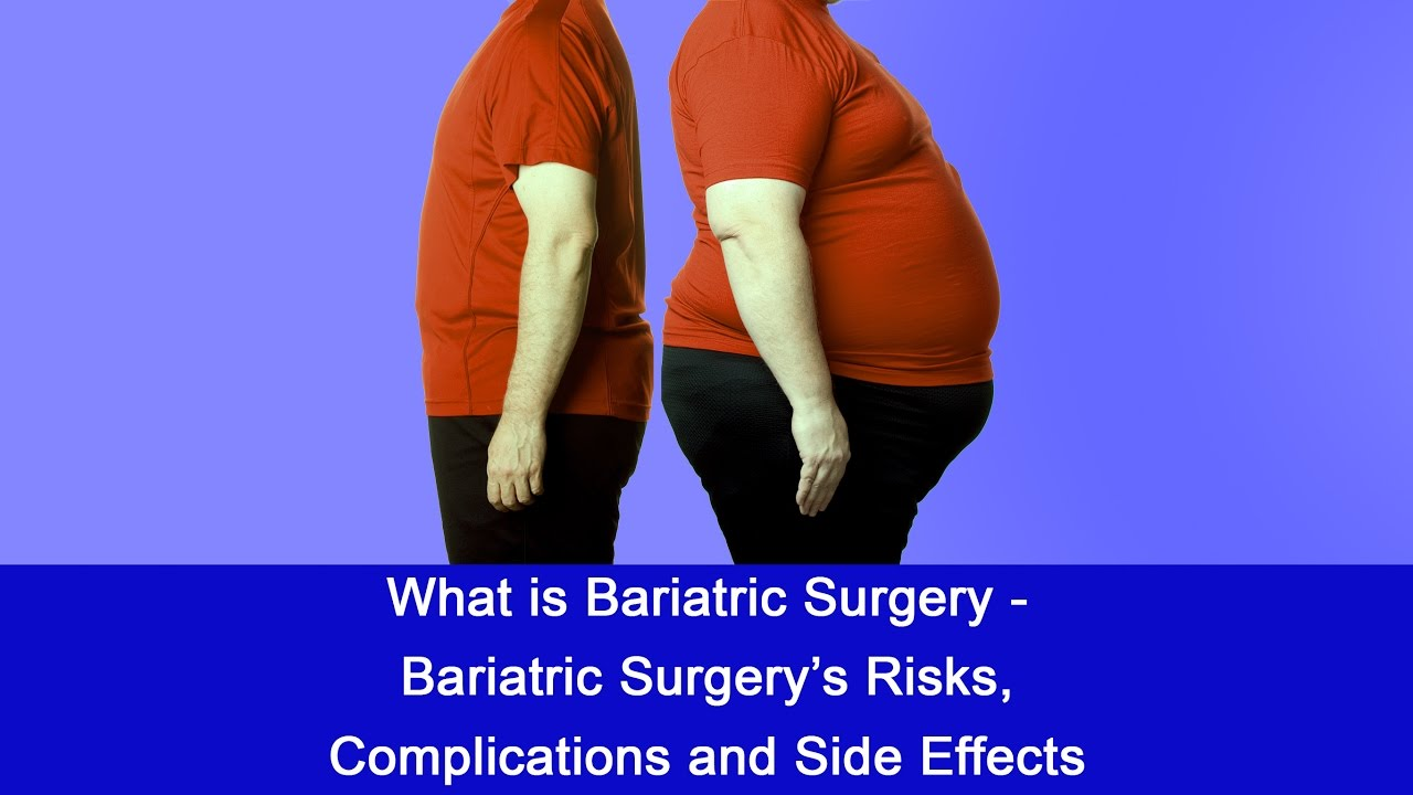 What Is Bariatric Surgery Bariatric Surgery S Risks Complications