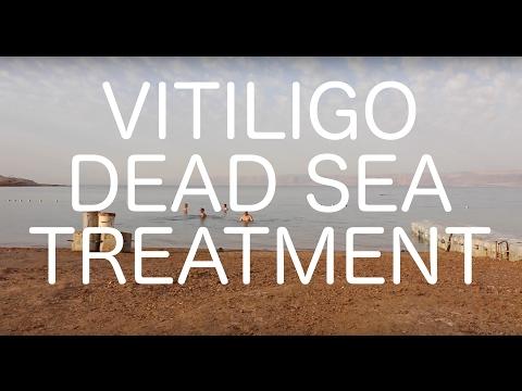 Trailer: Vitiligo Dead Sea Treatment