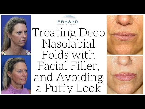 How Deep Nasolabial Folds can be Treated with Long Lasting