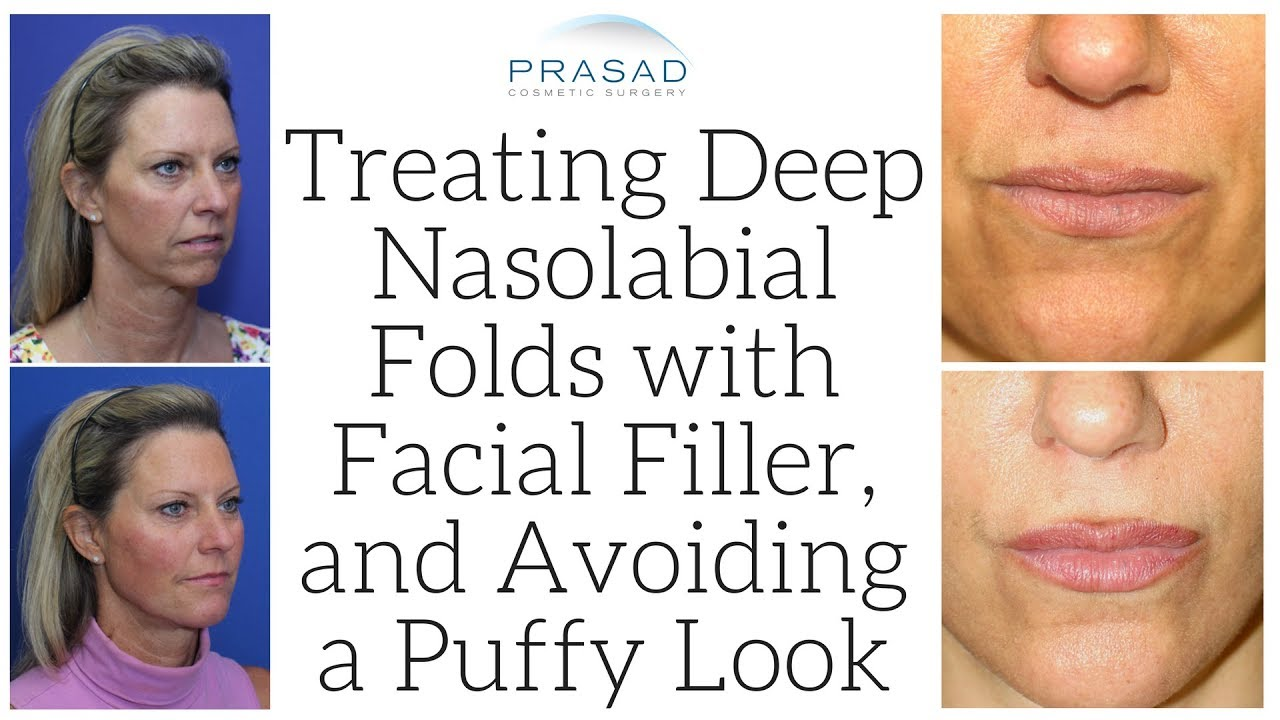 Deep facial folds