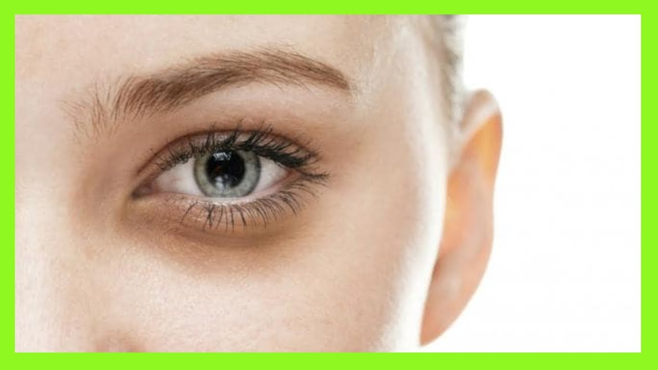 HOW TO COVER DARK CIRCLES | Remove Dark Circles Under Eyes