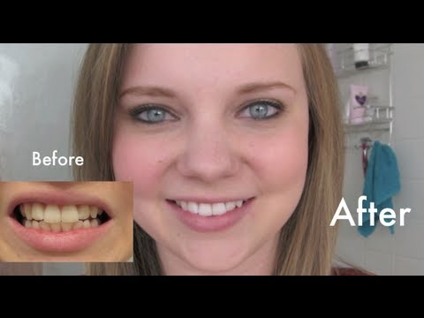 Crest 3D White Professional Effects Whitestrips: Final Thoughts