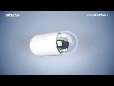 ENDOCAPSULE 10: Smart Algorithm, Safe Detection.