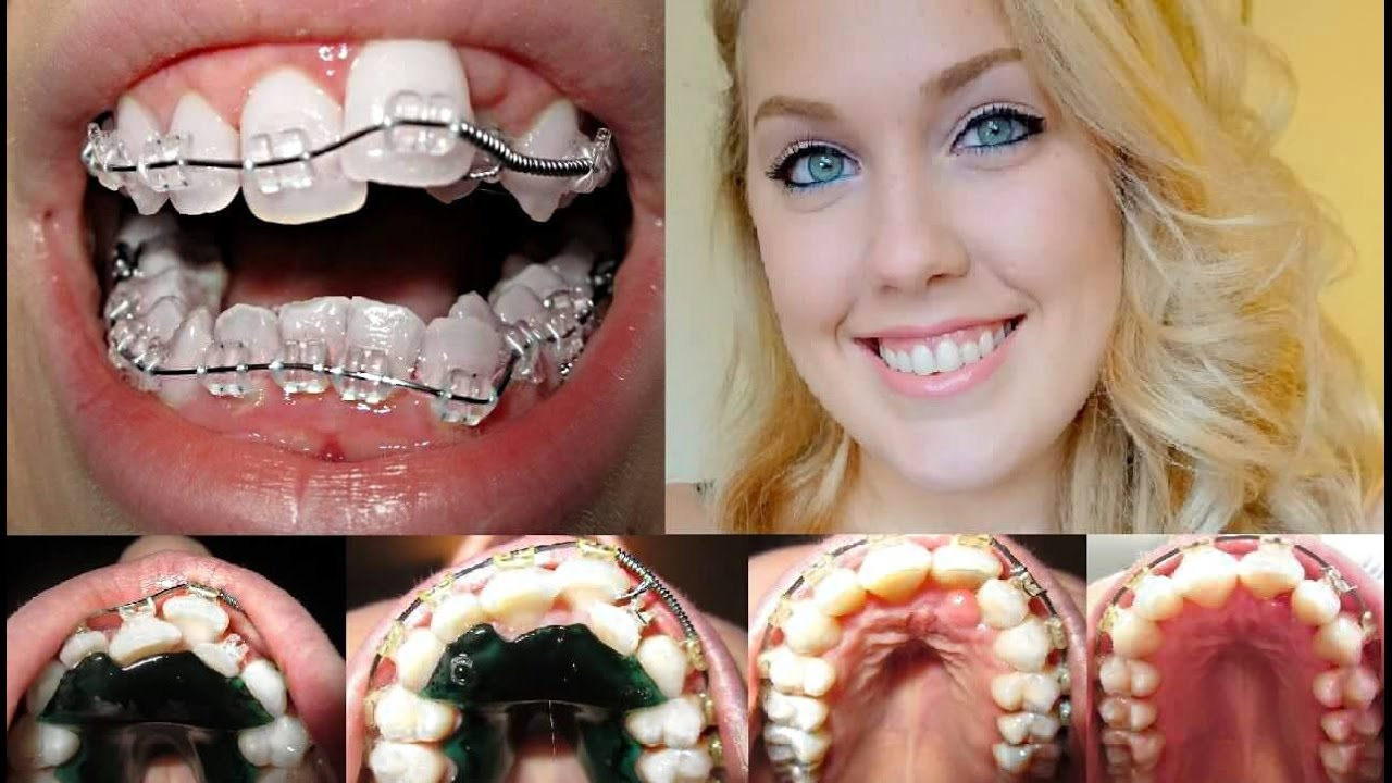 braces time lapse beautiful transformation ashley craig