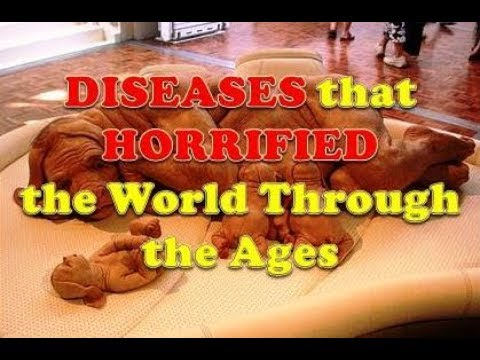 Diseases that Horrified the World Through the Ages