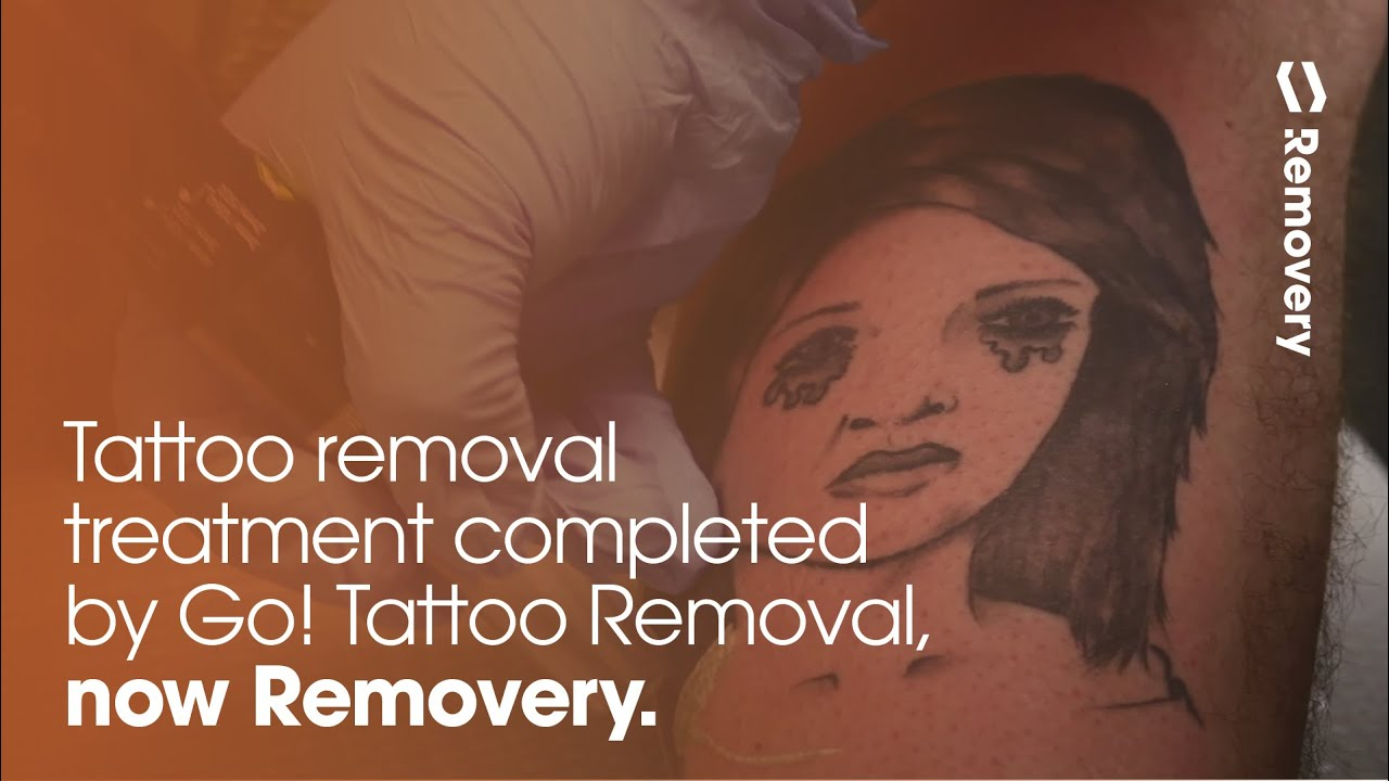 Large Laser Tattoo Removal | Lehigh Valley | GO! Tattoo Removal ...