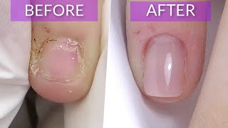 Short Bitten Nails Transformation to SQUARE shape In this video I am going to transform Anna's nails once again. Her favourite shape is square, so this time we ...