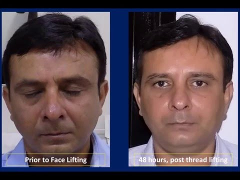 Thread Facelift, Face Lifting with threads in Mumbai, India   The