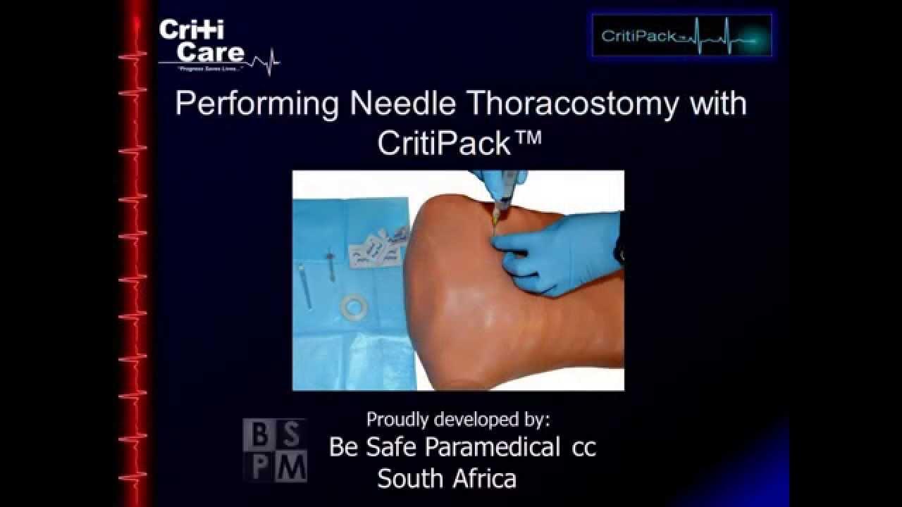 tension pneumothorax needle decompression - 1280×720