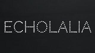 The Crookes - 03 Echolalia - Soapbox (2014) - Full Album Stream