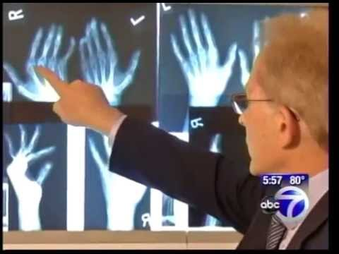 Knuckle replacement. Dr. Charles Melone at Mount Sinai Beth Israel