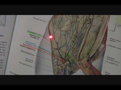 ilioinguinal iliohypogastric and genitofemoral nerve eval ...  ilioinguinal il...
