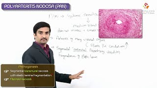 Polyarteritis Nodosa - Definition, Epidemiology, Pathology ,clinical Features, Diagnosis, Treatment
