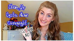 hqdefault - How To Cure Cystic Acne Fast