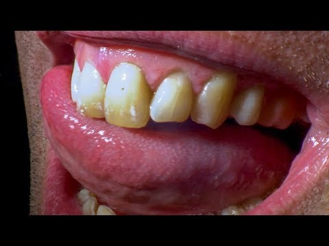 What Happens When You Don't Brush Your Teeth? | Earth Lab