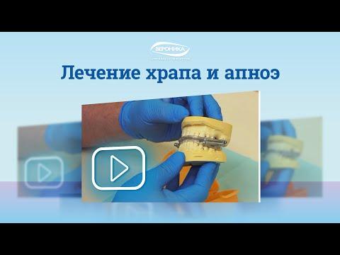 Лечение храпа в Санкт-Петербурге – диагностика, лечение и профилактика апноэ