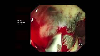 Lupus: Penyakit Seribu Wajah.