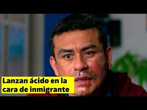 Le lanzan ácido de batería en la cara a un hombre por ser inmigrante en EEUU