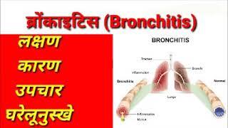 Bronchitis treatment | ब्रोंकाइटिस | causes | symptoms | home remedy | upay | easy treatment