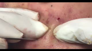 30 MINUTES OF EXTRACTING ACNE!
