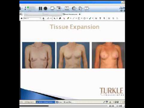 indianapolis Breast augmentation