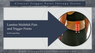 Lumbar Multifidus Pain and Trigger Points