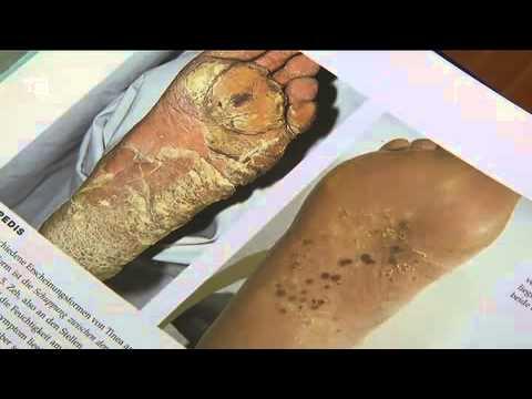 Fungo tra perossido di idrogeno di dita del piede