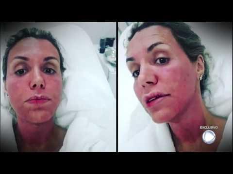 """Renata Banhara Fala Da Luta Contra Doença Grave: """"Minha Cabeça Chegou A Pesar Um 1,5 Kg A Mais"""""""