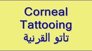 Dr Hayam Adel Plastic Eyelid Surgery & corneal tattoo (2)