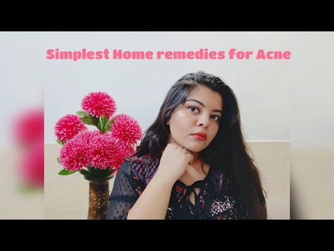 5 Simple Home remedies for acne   For Adults & teenagers #homeremediesforacne #indianacneremedies
